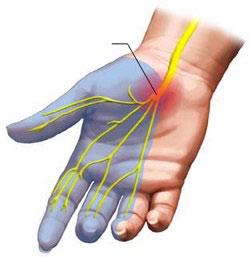 Kako na prirodan način ublažiti sindrom karpalnog kanala